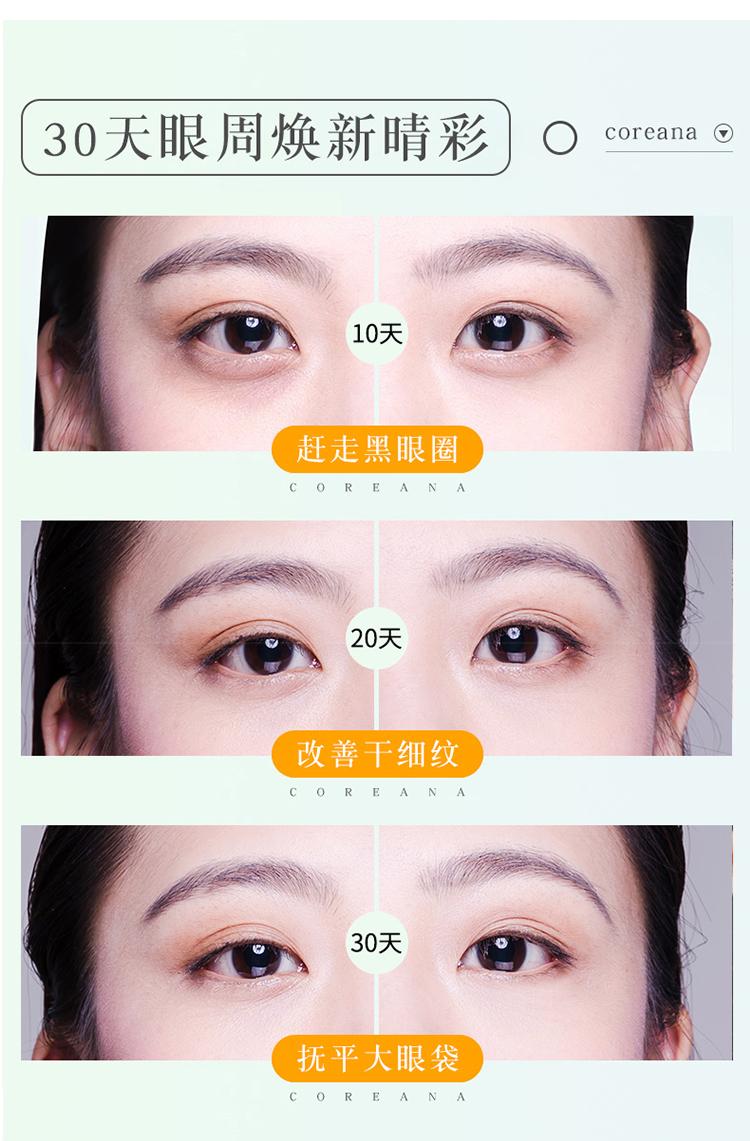 正品韩国Coreana高丽雅娜肉毒眼霜30ml 补水淡化细纹去眼袋送按摩仪